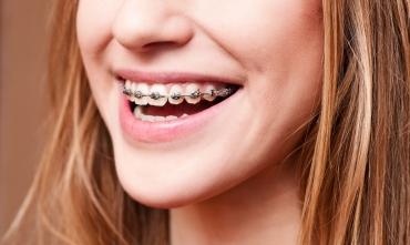 Как выглядят брекеты Damon Q на зубах