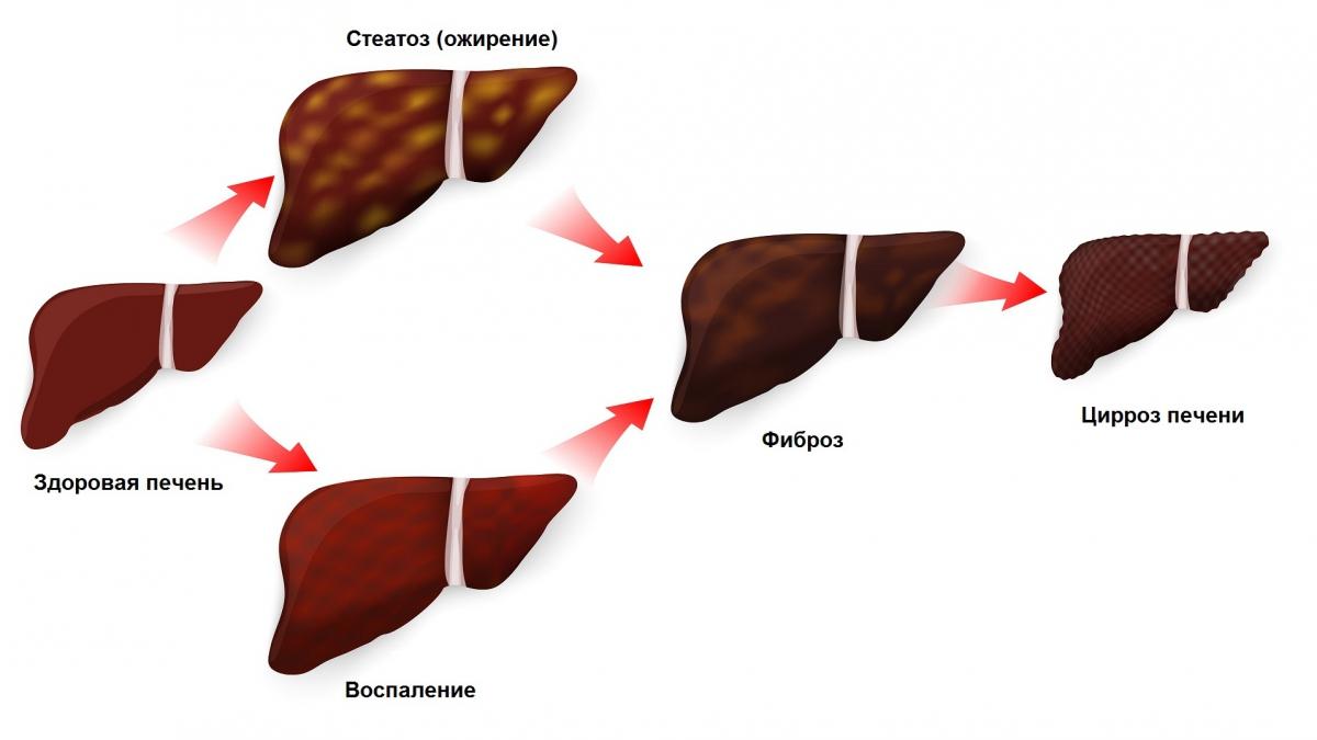Стадии патологических изменений печени